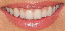 Picture of Jade Roper teeth and smile