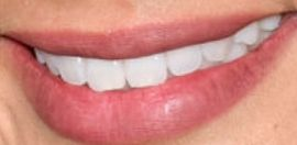 Picture of Jamie Chung teeth and smile