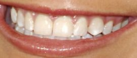 Picture of Jamie Lynn Spears teeth and smile