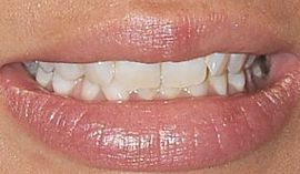 Picture of Janel Parrish teeth and smile