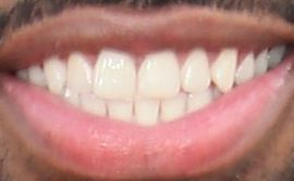Picture of Jason Derulo teeth and smile