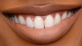 Picture of Javicia Leslie teeth and smile