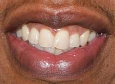 Picture of Jay-Z teeth and smile