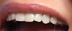 Jennifer Aniston's teeth
