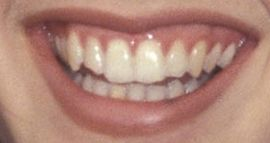 Picture of Jennifer Connelly teeth and smile