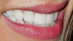 Picture of Jennifer Esposito teeth and smile