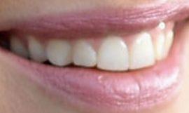 Picture of Jennifer Garner teeth and smile