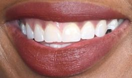 Picture of Jennifer Hudson's teeth while smiling