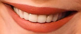 Jennifer Lawrence's teeth