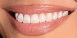Jennifer Lopez's teeth and smile