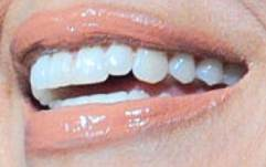 Jennifer Lopez's teeth and smile