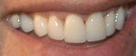 Picture of Jerry Seinfeld teeth and smile