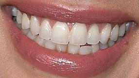 Jessica Alba teeth