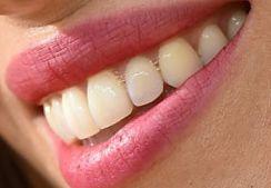 Jessica Biel teeth