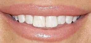 Jessica Simpson's teeth