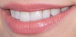 Picture of Jessie J teeth and smile