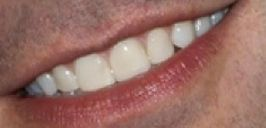 Picture of Jimmy Fallon's teeth while smiling