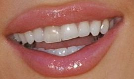 Picture of Joanna Krupa teeth and smile