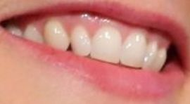 Picture of Jodie Foster teeth and smile