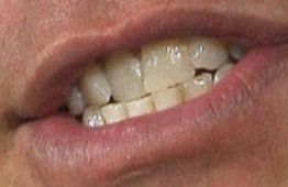 John Cena teeth