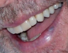 John Travolta teeth