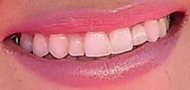 Picture of JoJo Fletcher teeth and smile