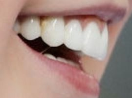 Picture of JoJo Siwa teeth and smile