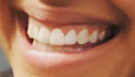 Picture of Jordan Alexander teeth and smile