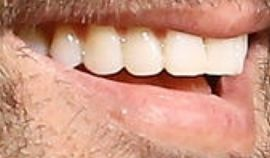 Picture of Juanes teeth and smile