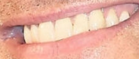 Picture of Jude Law teeth and smile