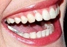 Julia Roberts teeth