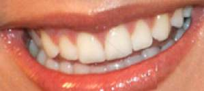 Julianne Hough teeth