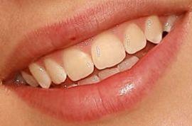 Justin Bieber's teeth