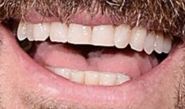 Picture of Justin Theroux teeth and smile