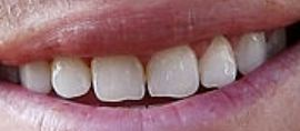Picture of Justin Thomas teeth and smile