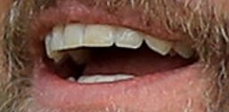 Justin Timberlake's teeth