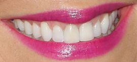Picture of Kaitlin Olson teeth and smile