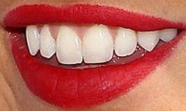 Picture of Kaitlyn Bristowe teeth and smile