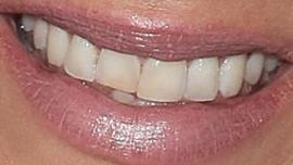 Picture of Kaley Cuoco teeth and smile
