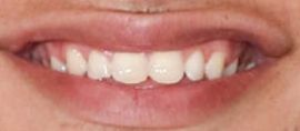 Picture of Kane Brown teeth and smile
