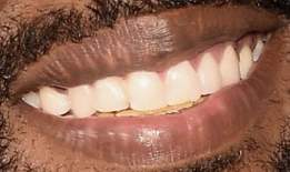 Kanye West teeth