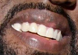 Kanye West teeth