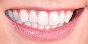 Karlie Kloss teeth and smile