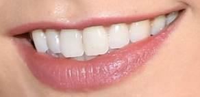 Karlie Kloss teeth