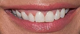 Picture of Kate Chastain teeth and smile