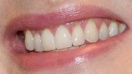 Picture of Kate Winslet teeth and smile