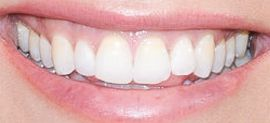 Picture of Katherine Schwarzenegger teeth and smile