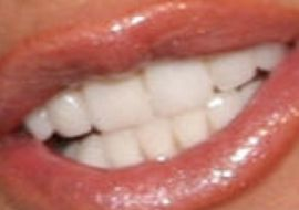 Picture of Kathie Lee Gifford teeth and smile