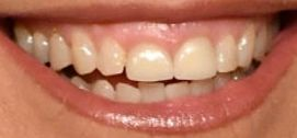 Katie Couric teeth