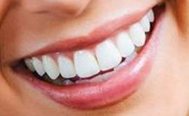 Picture of Katie Thurston teeth and smile
